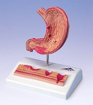 gastritis sintomas causas y tratamiento