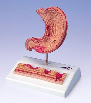 que es gastritis aguda